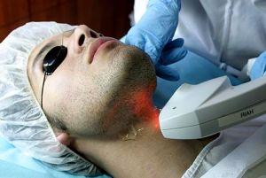 depilacja laserowa -  mężczyzna